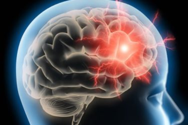 image cerveau humain